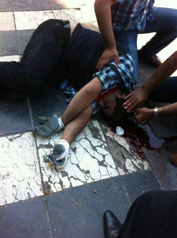 Man Bleeding from Skull in Istanbul